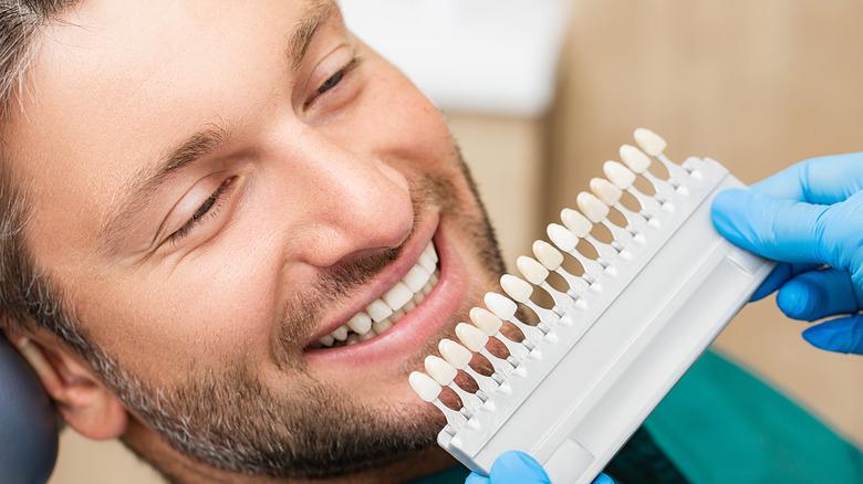 Dentist using palette tooth color sample to determine color of veneers