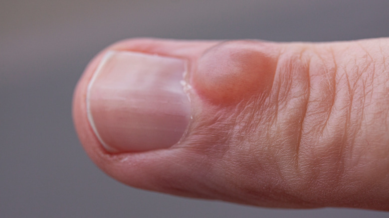 Small cyst on a person's finger
