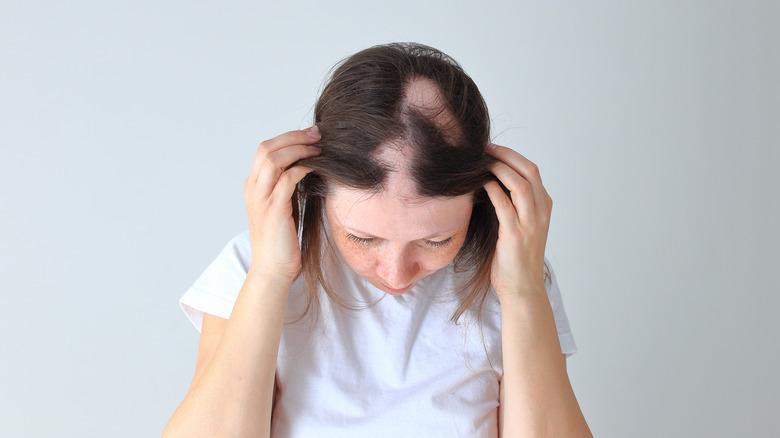 Woman displaying alopecia bald spots