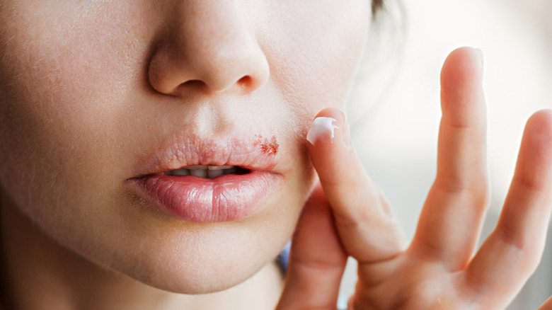 Close up of cold sore on woman's lip