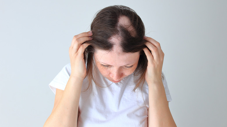 women showing her patchy hair loss
