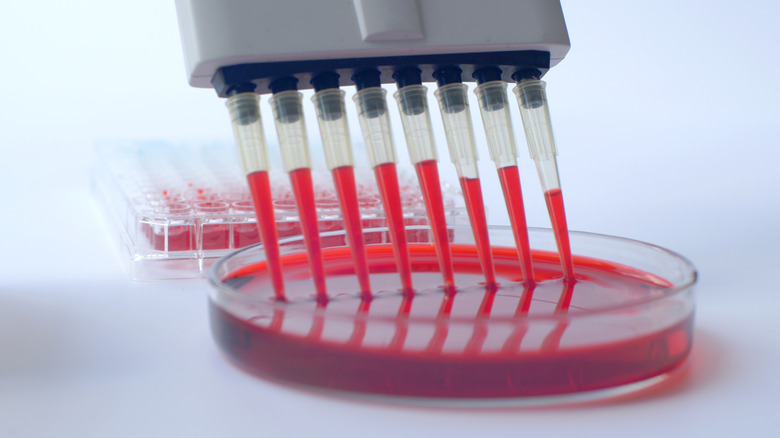 blood in laboratory