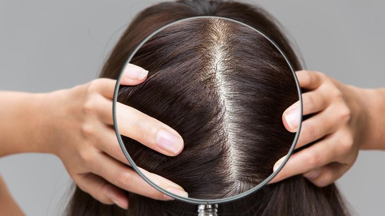 woman going bald
