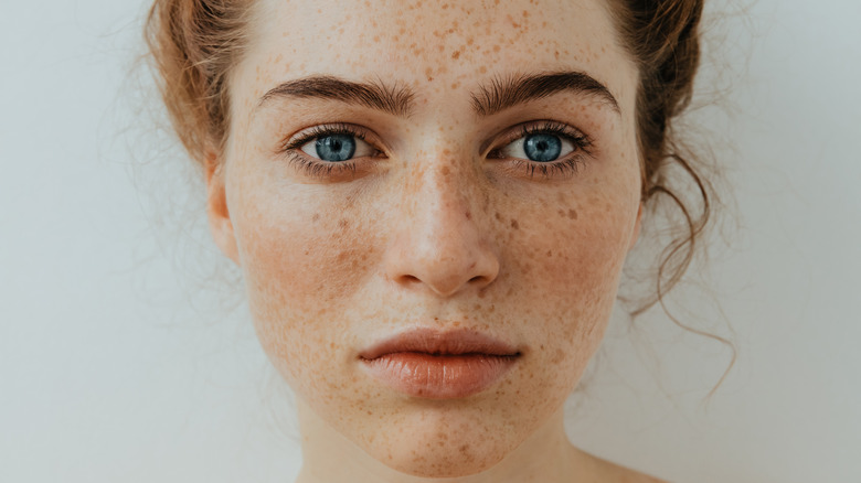 fair-skinned woman with freckles