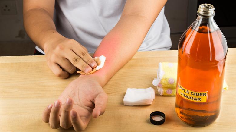 Person applying apple cider vinegar to a sunburn on their forearm