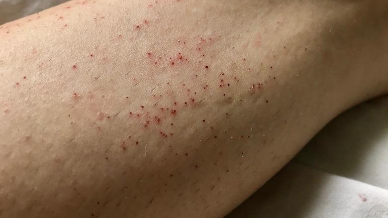 razor burn on skin
