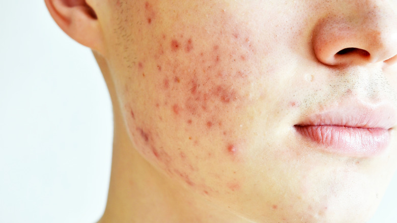 profile of a male with both acne and acne scars