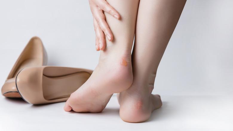 Blister on heels