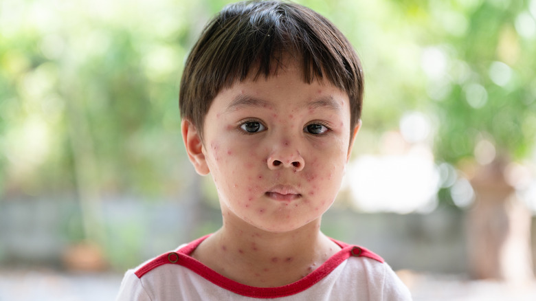boy with chickenpox