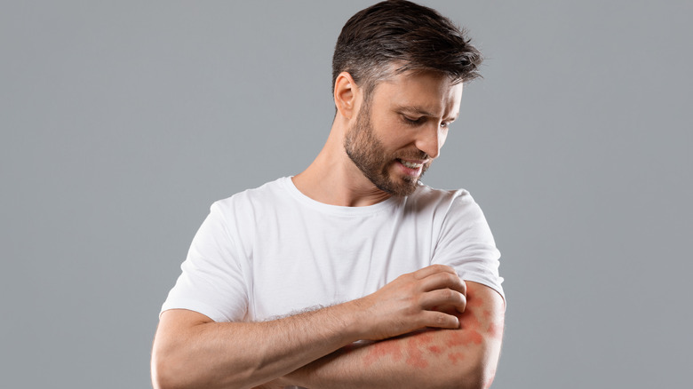 Man scratching rash on arm