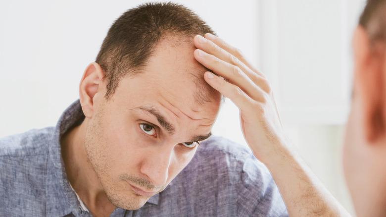 Man balding looking in mirror
