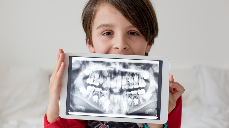 Young boy holding dental x-ray in front of him
