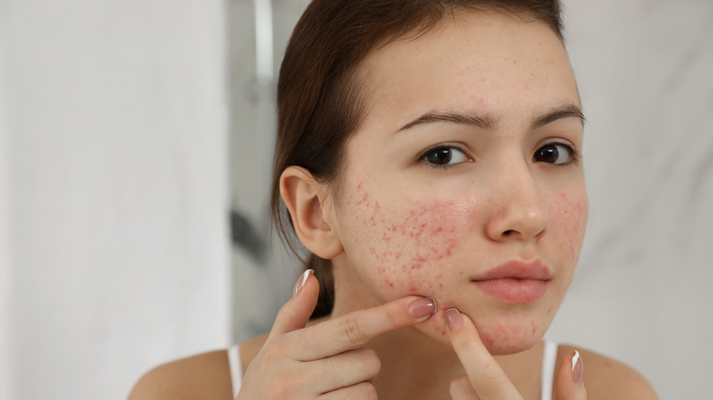 Woman touching her acne