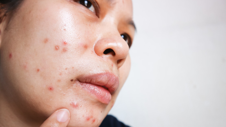 Woman with acne breakout