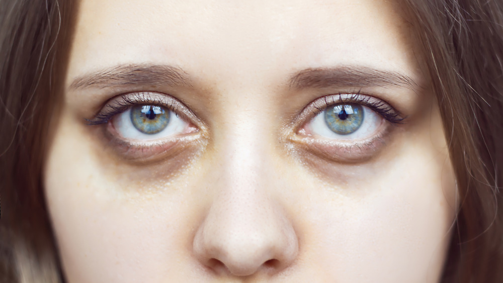 Young woman with dark circles under her eyes