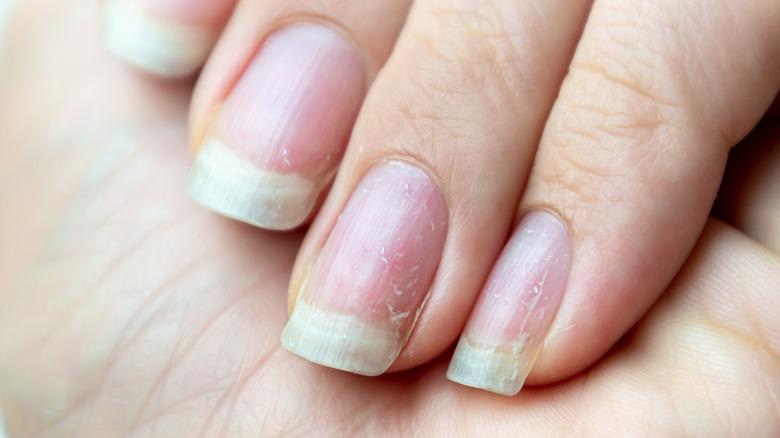Close up of damaged nails