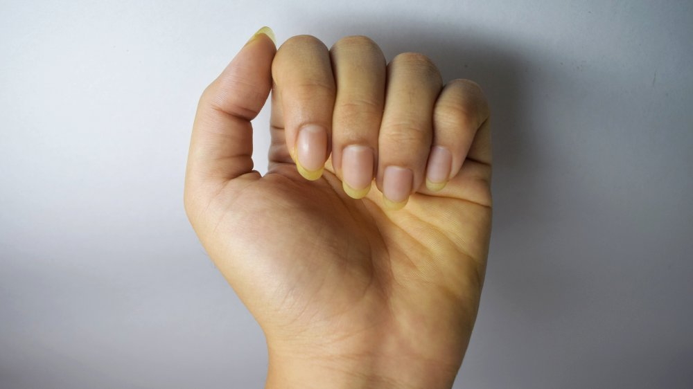 yellowed fingernails