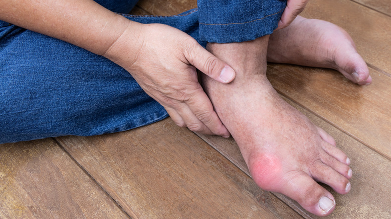 Gout attack in the foot