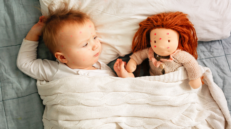Child with chickenpox, with doll with chickenpox spots