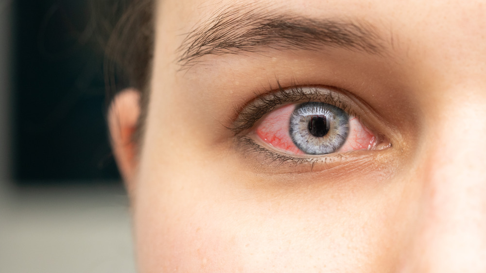 Young girl with conjunctivitis pointing to her eye