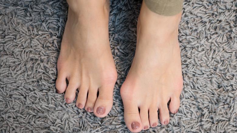 bunions on feet