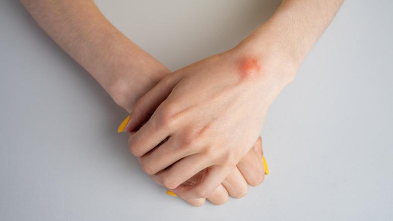 a ganglion cyst on a woman's wrist