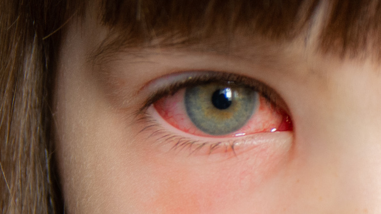 close-up of pink eye in girl's right eye