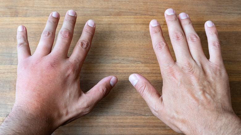 2 hands placed on a desk, one hand is swollen