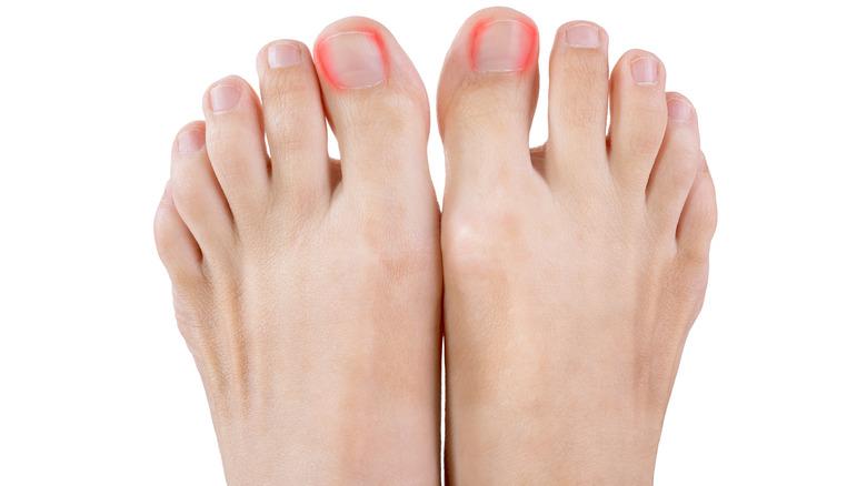 Ingrown toenails on woman's foot