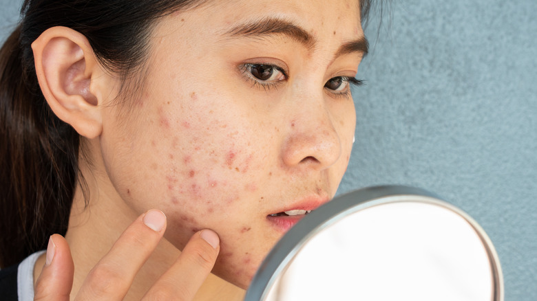 young woman examining her acne in a mirror