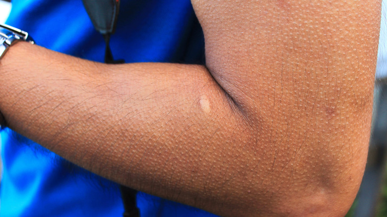 Close up of arm with goosebumps