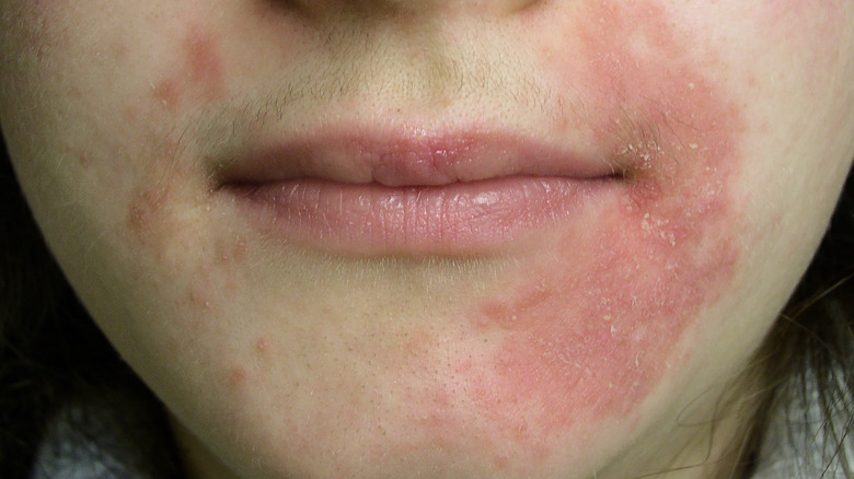 person with perioral dermatitis