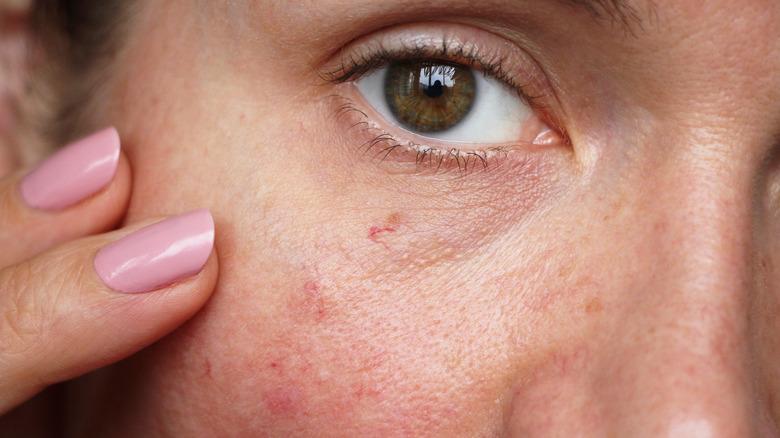 burst blood vessels on woman's face