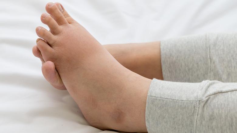 Pregnant woman's swollen feet