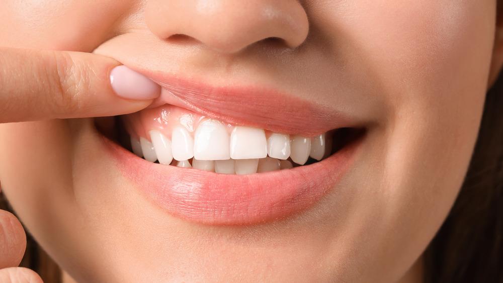 woman exposing gums