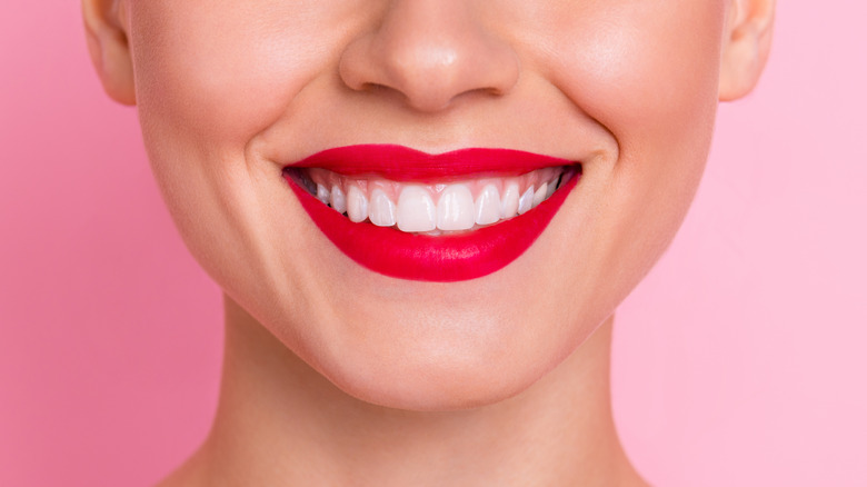 woman smiling showing off perfect white teeth