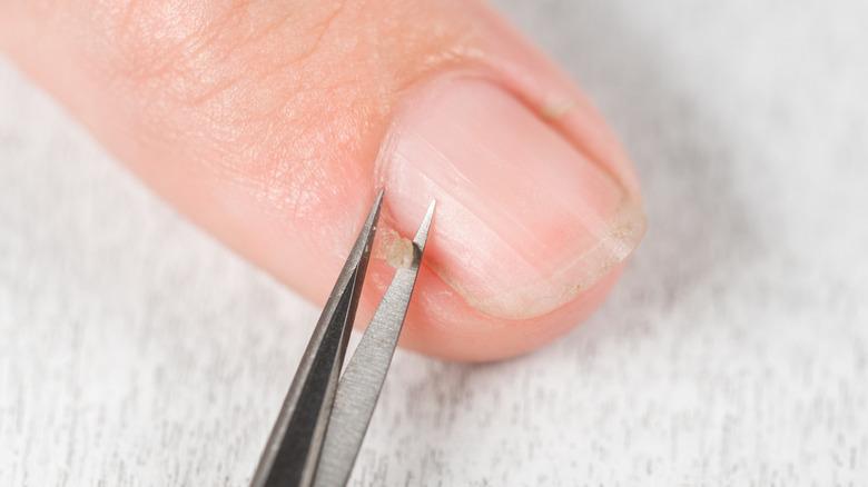 Trimming a hangnail