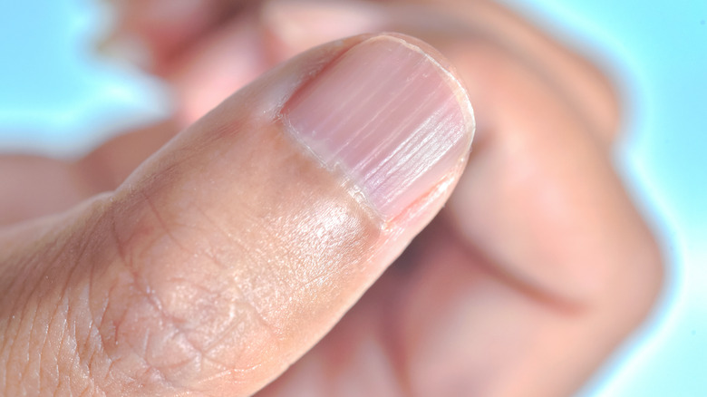 close up of a thumb with Beau's lines