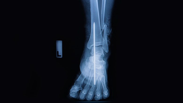 x-ray of metal rod in ankle