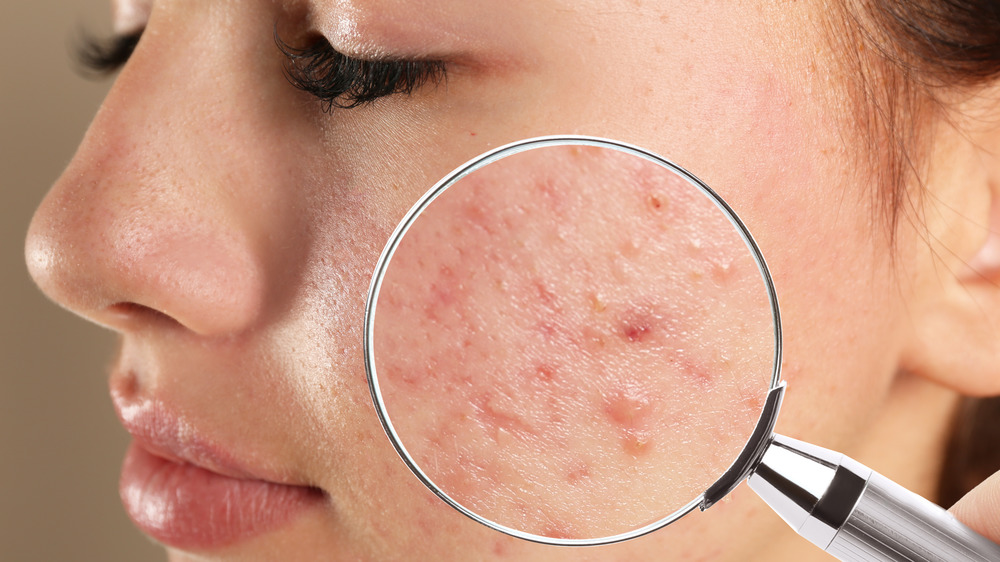 What Could Be Causing Your Acne?