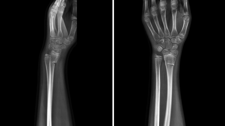 Two x-rays side by side of a hand and wrist showing broken wrist bone