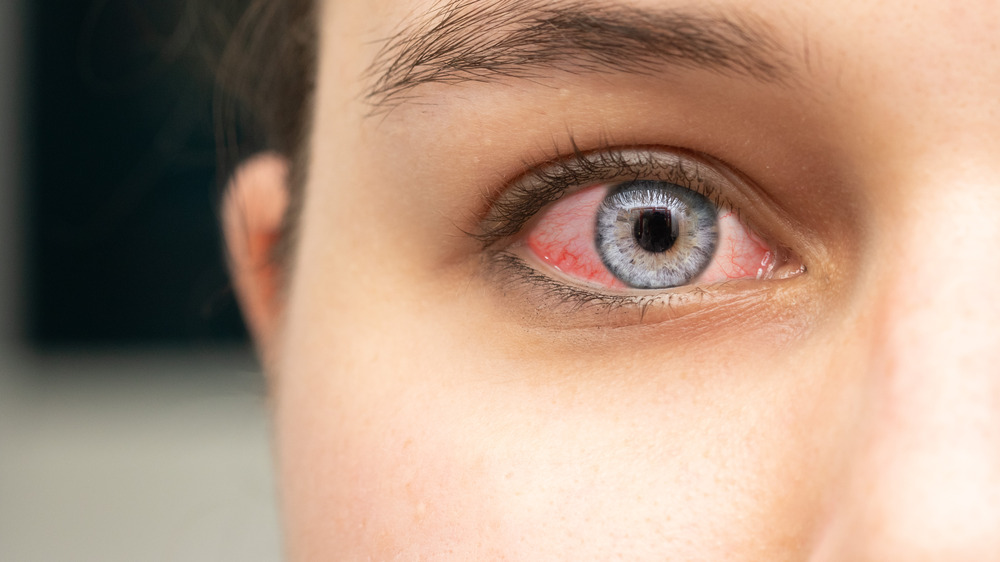 Close up of woman's red eye